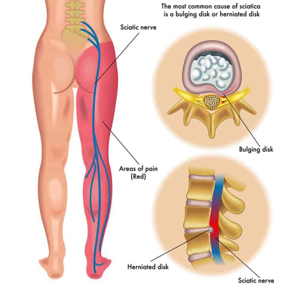how to sit with sciatica